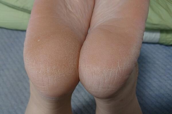 女性の足のかかとにも効果があるクリアフットヴェール